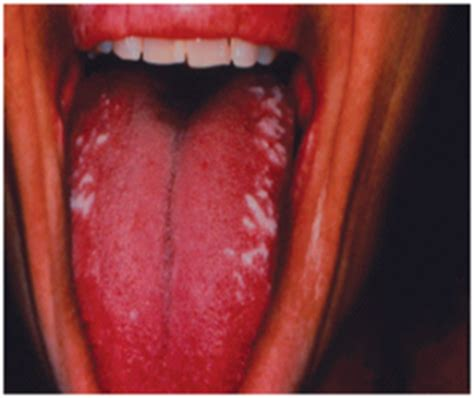 White Lesion Of the Oral Mucosa Part 4 | Intelligent Dental