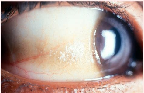 What is an eye cyst? Types of conjunctival cystic diseases
