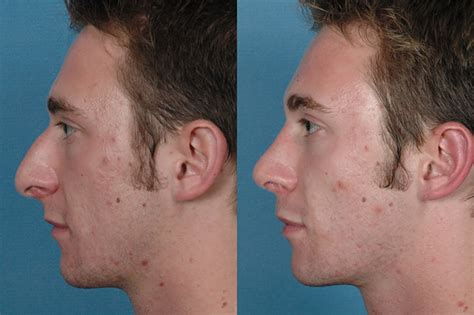 Non-Surgical Rhinoplasty, IL | Injectable Rhinoplasty