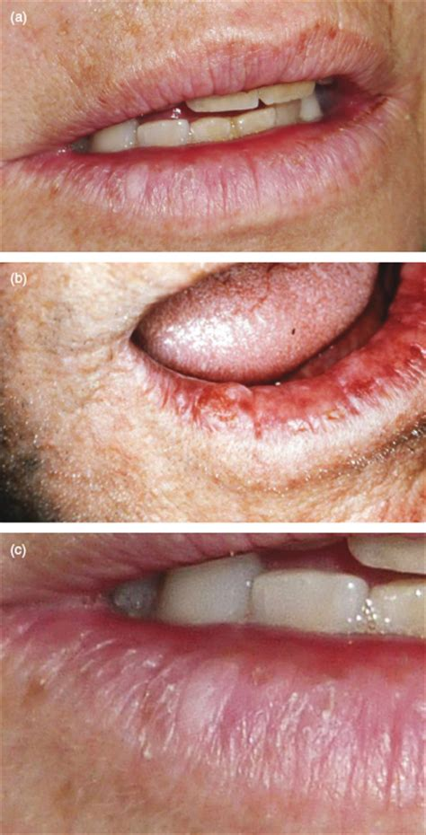 3: Common Oral Soft Tissue Lesions | Pocket Dentistry