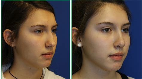 Functional Rhinoplasty in Syracuse, Rochester, and Ithaca