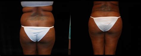 Patient #779 Brazilian Butt Lift Before and After Photos