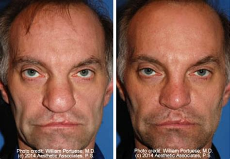 Before and After Photo Gallery of Asymmetrical Nose-Page2