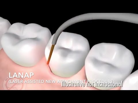 How Diabetes Affects Oral and Gum Health
