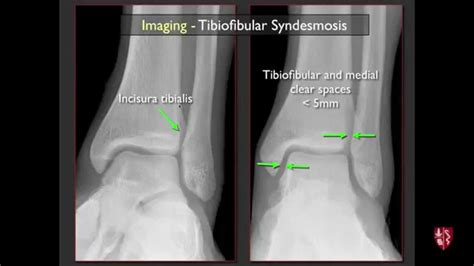 Imaging of the Tibiofibular Syndesmosis and High Ankle