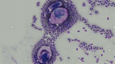 Parasitology   Galluvet Birds and Fowl