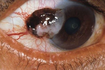 Eye cancer symptoms- check out at early stage ~ Health Tips