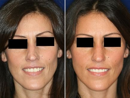 Non-Surgical Rhinoplasty: Permanent & Low-cost