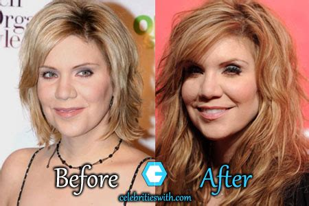 Alison Krauss Plastic Surgery, Facelift, Fillers, Before
