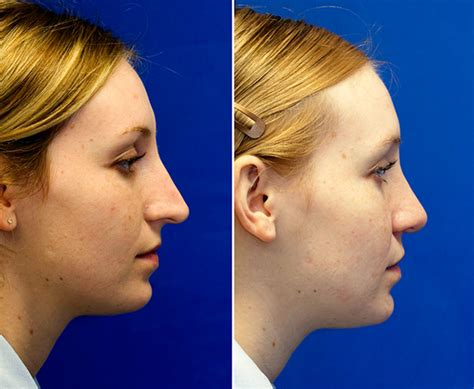Long Over Projected Nose | Rhinoplasty in Seattle