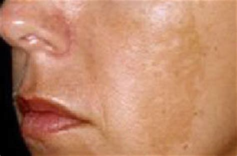 Brown Spots, Hyperpigmentation and Blotchy Skin Treatments