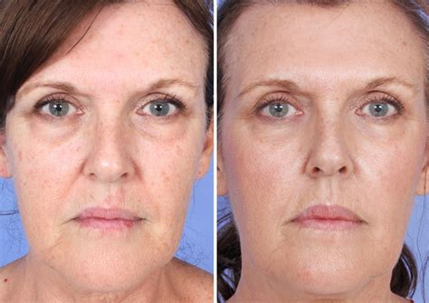 Micro Needling Before & After Photos | Dr