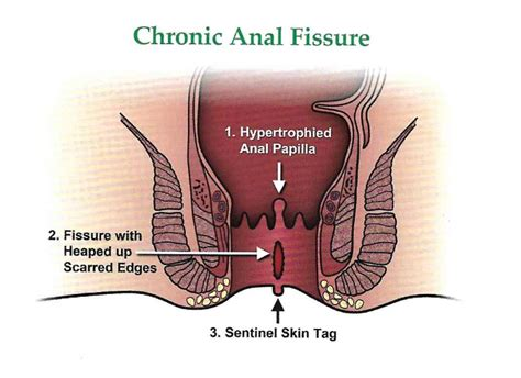 Anal Fissure - General and Colorectal Surgical Specialists